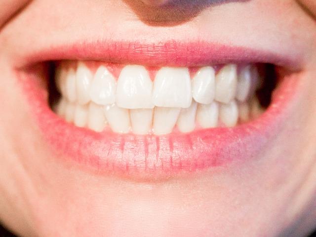 Implanty stomatologiczne Kraków - pełne uzębienie po zabiegu