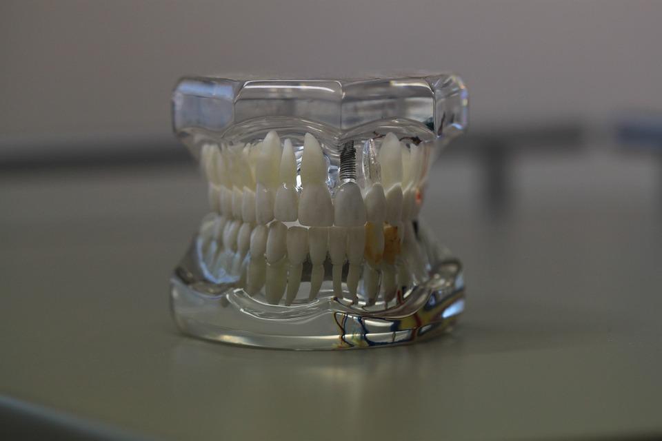 Proteza wykorzystywana w protetyce stomatologicznej w Andrychowie